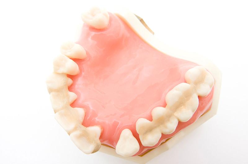 歯を失ってしまう原因は・・・